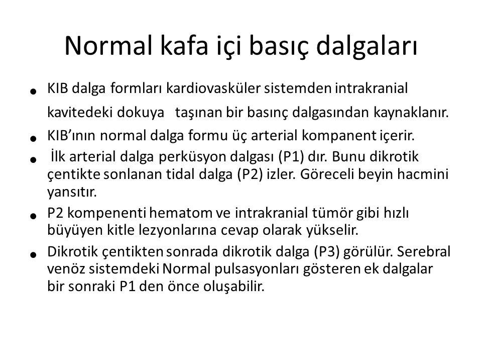 Normal kafa içi basıç dalgaları