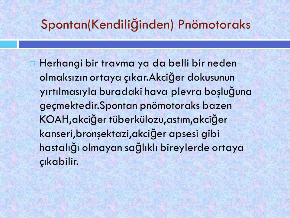 Spontan(Kendiliğinden) Pnömotoraks