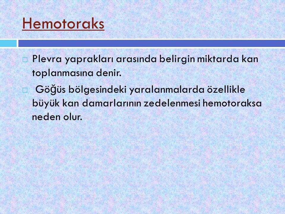 Hemotoraks Plevra yaprakları arasında belirgin miktarda kan toplanmasına denir.