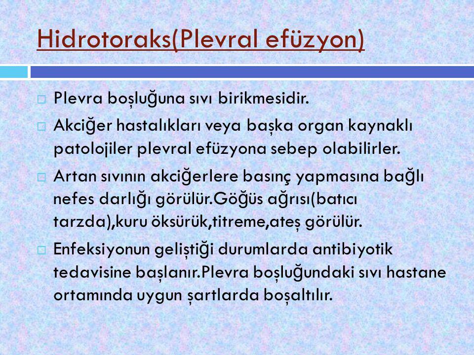 Hidrotoraks(Plevral efüzyon)