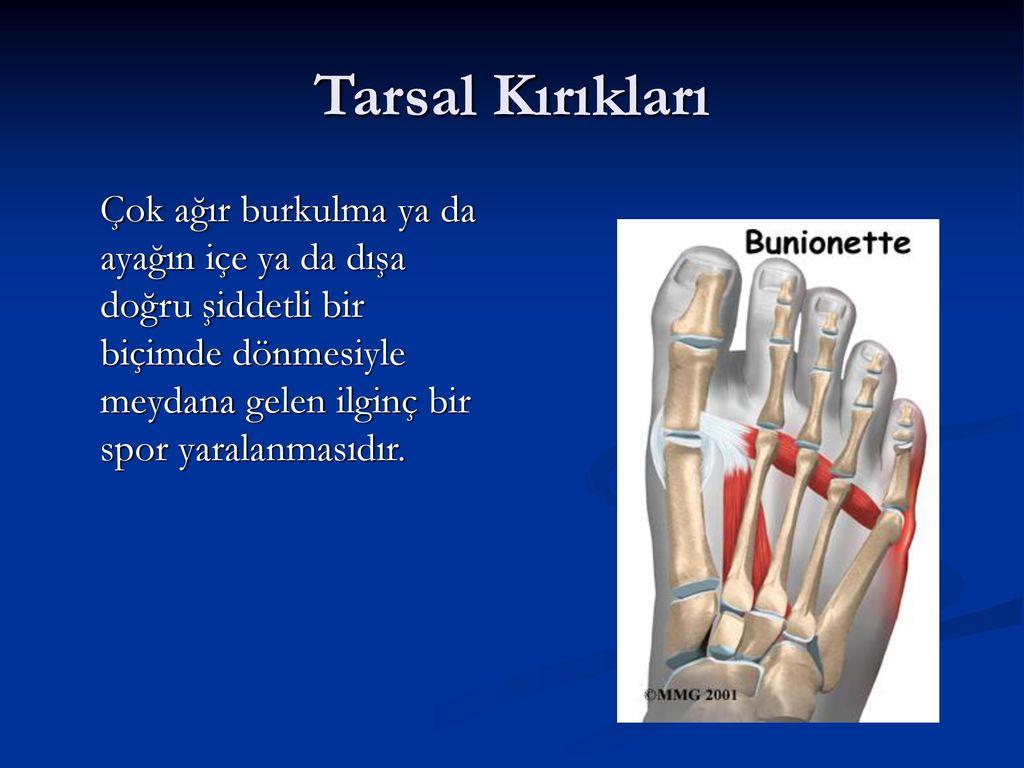 Tarsal Kırıkları Çok ağır burkulma ya da ayağın içe ya da dışa doğru şiddetli bir biçimde dönmesiyle meydana gelen ilginç bir spor yaralanmasıdır.