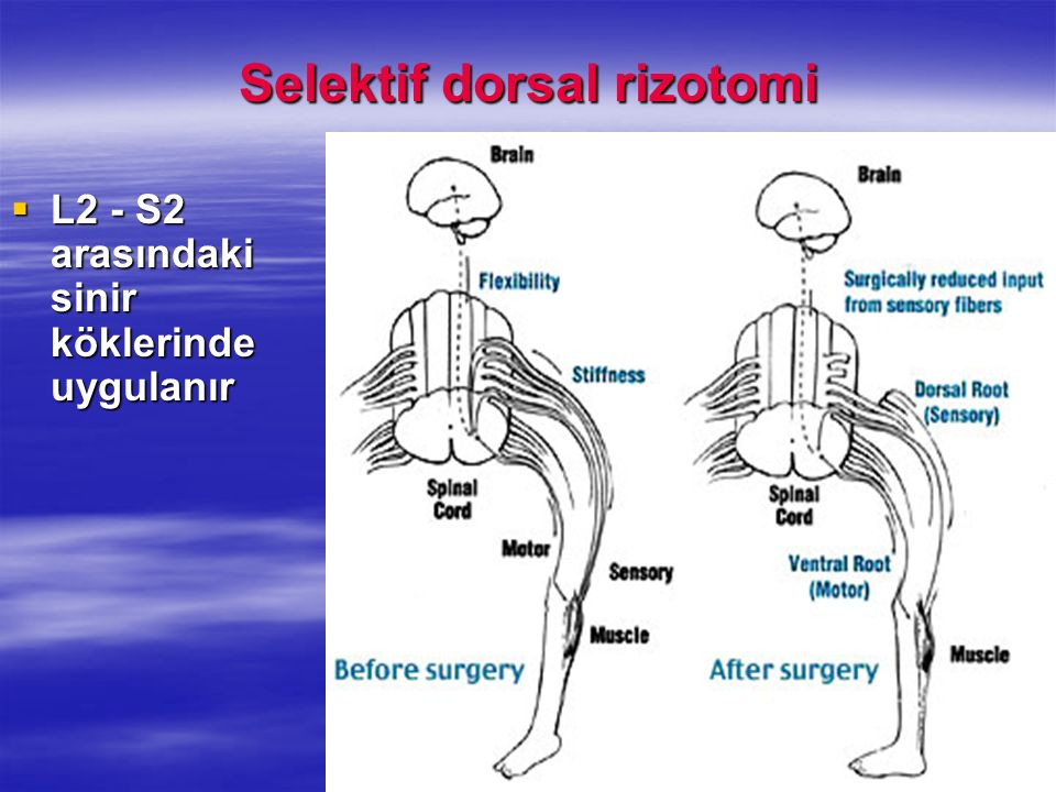 Selektif dorsal rizotomi