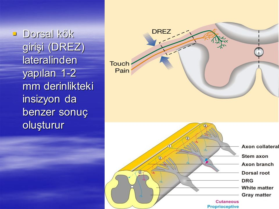 Dorsal kök girişi (DREZ) lateralinden yapılan 1-2 mm derinlikteki insizyon da benzer sonuç oluşturur