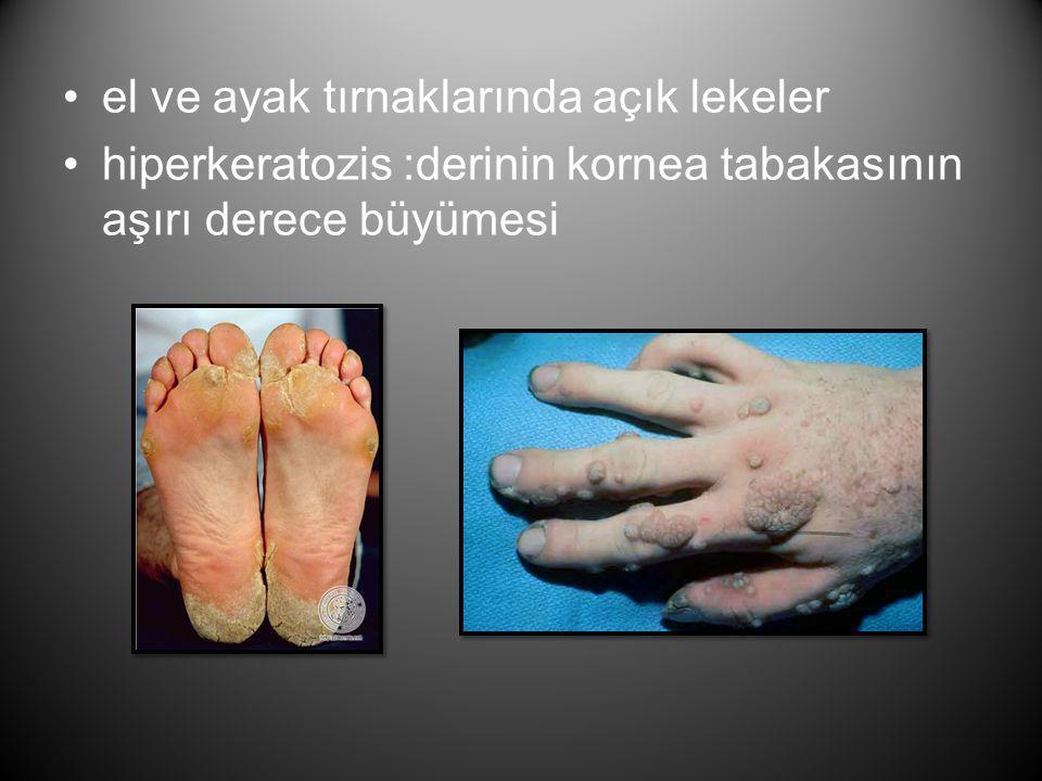 el ve ayak tırnaklarında açık lekeler