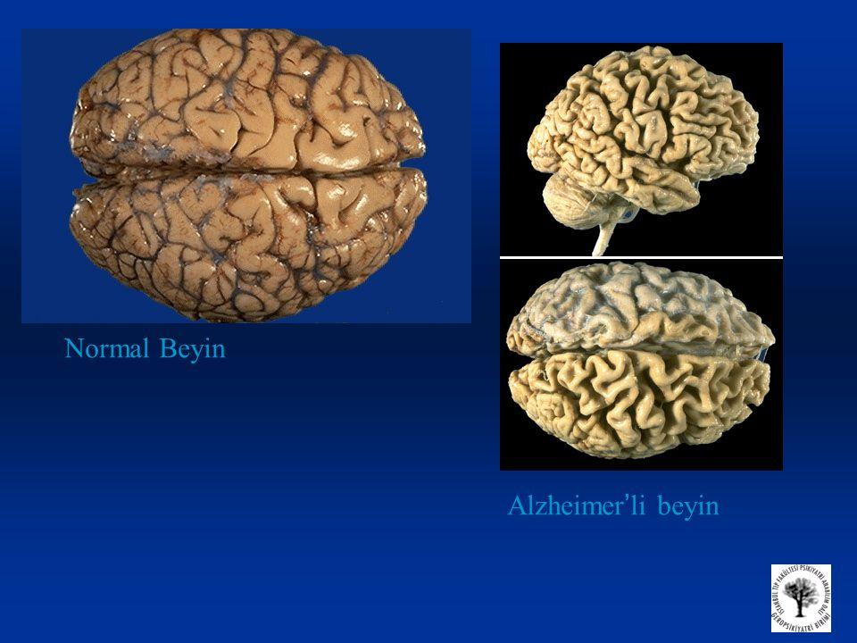 Normal Beyin Alzheimer'li beyin