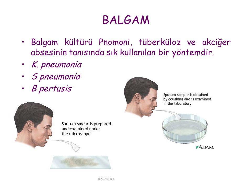 BALGAM Balgam kültürü Pnomoni, tüberküloz ve akciğer absesinin tanısında sık kullanılan bir yöntemdir.