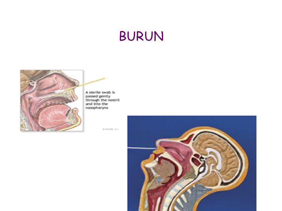 BURUN 95