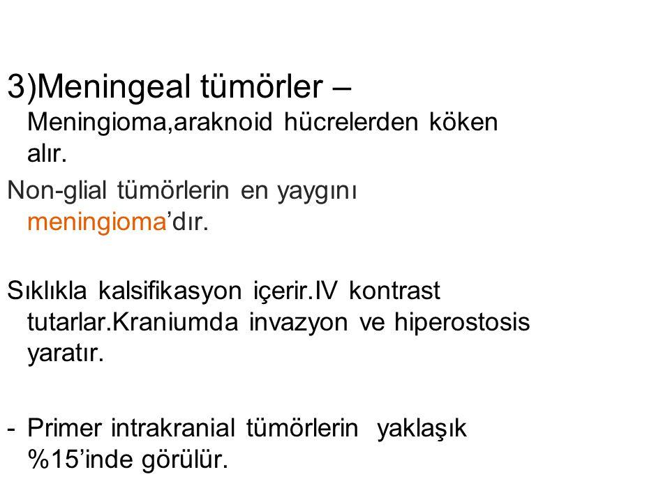 3)Meningeal tümörler – Meningioma,araknoid hücrelerden köken alır.