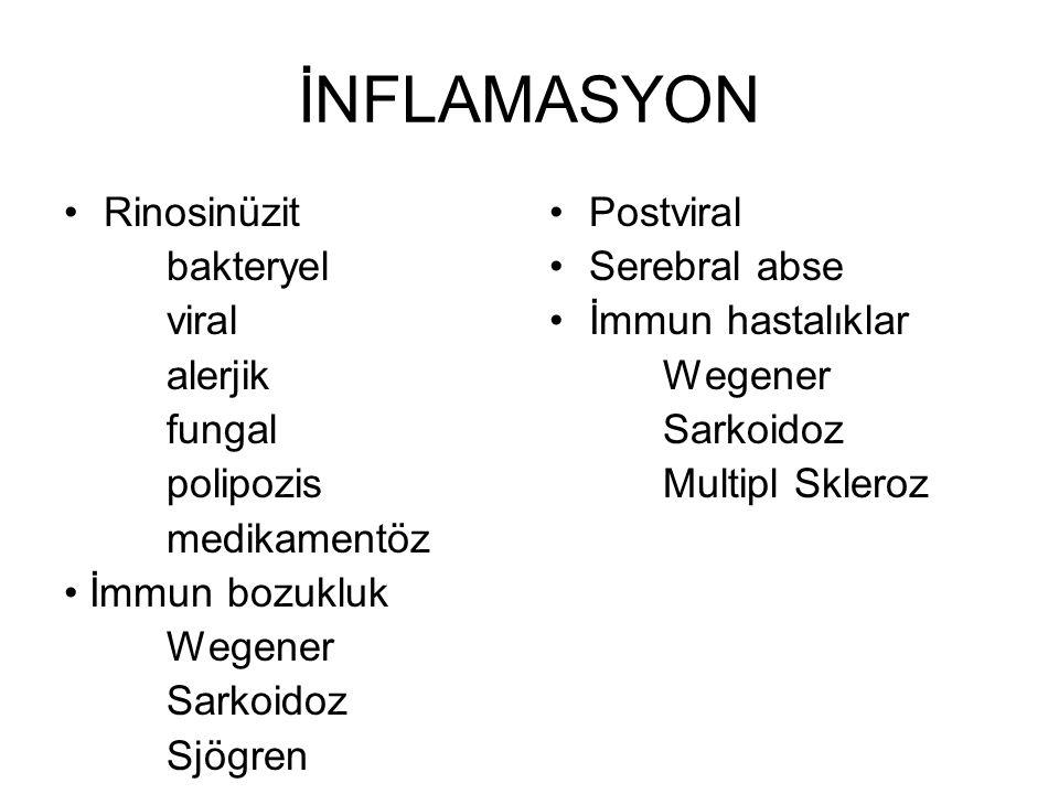 İNFLAMASYON Rinosinüzit bakteryel viral alerjik fungal polipozis