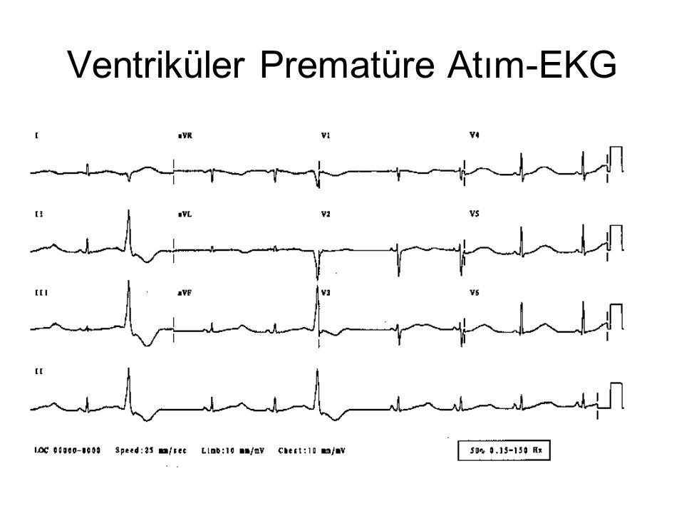 Ventriküler Prematüre Atım-EKG