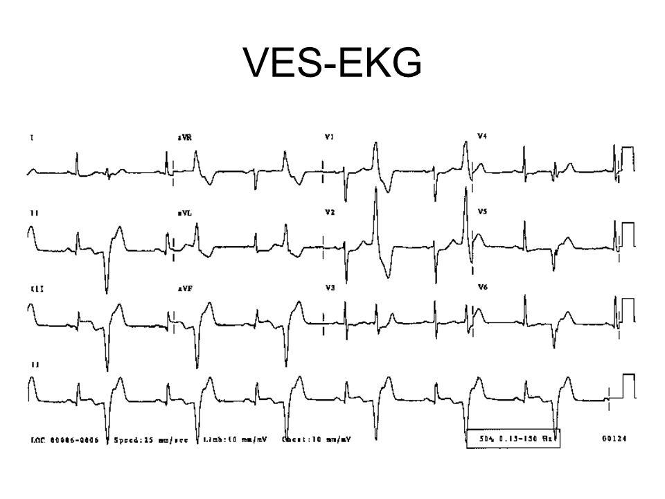 VES-EKG