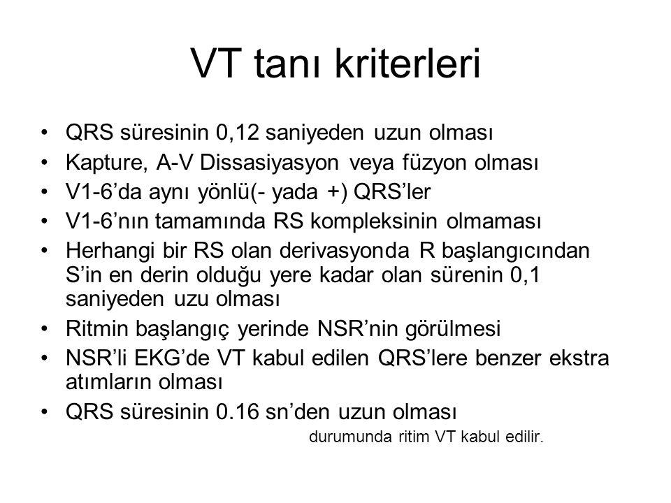 VT tanı kriterleri QRS süresinin 0,12 saniyeden uzun olması