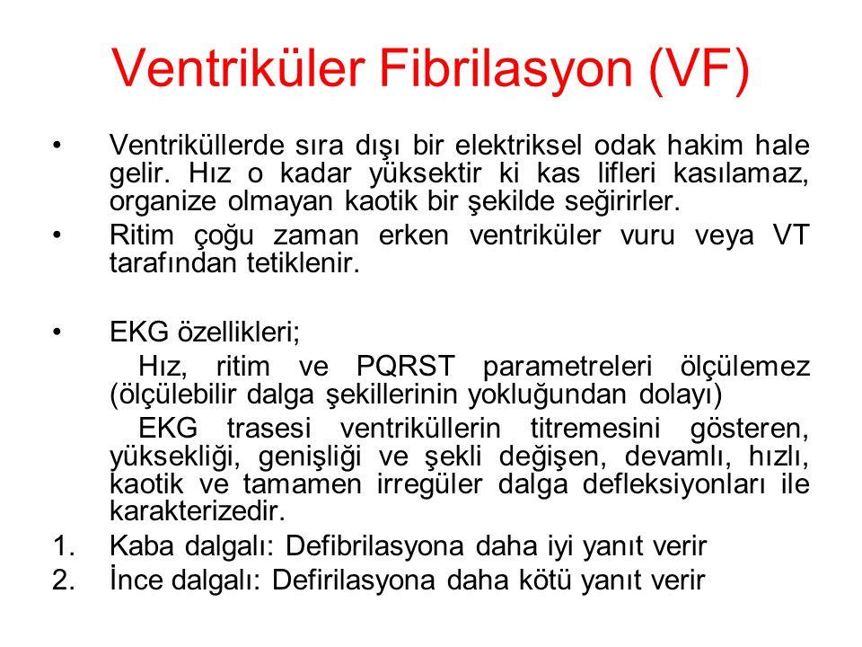 Ventriküler Fibrilasyon (VF)