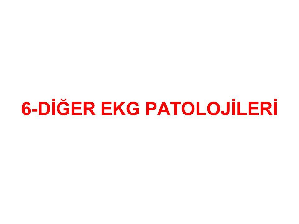 6-DİĞER EKG PATOLOJİLERİ