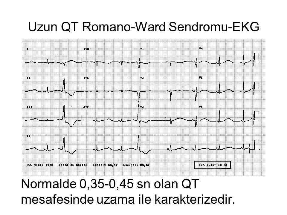 Uzun QT Romano-Ward Sendromu-EKG