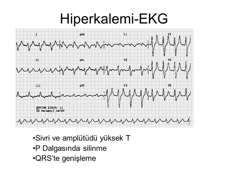 Sivri ve amplütüdü yüksek T P Dalgasında silinme QRS'te genişleme