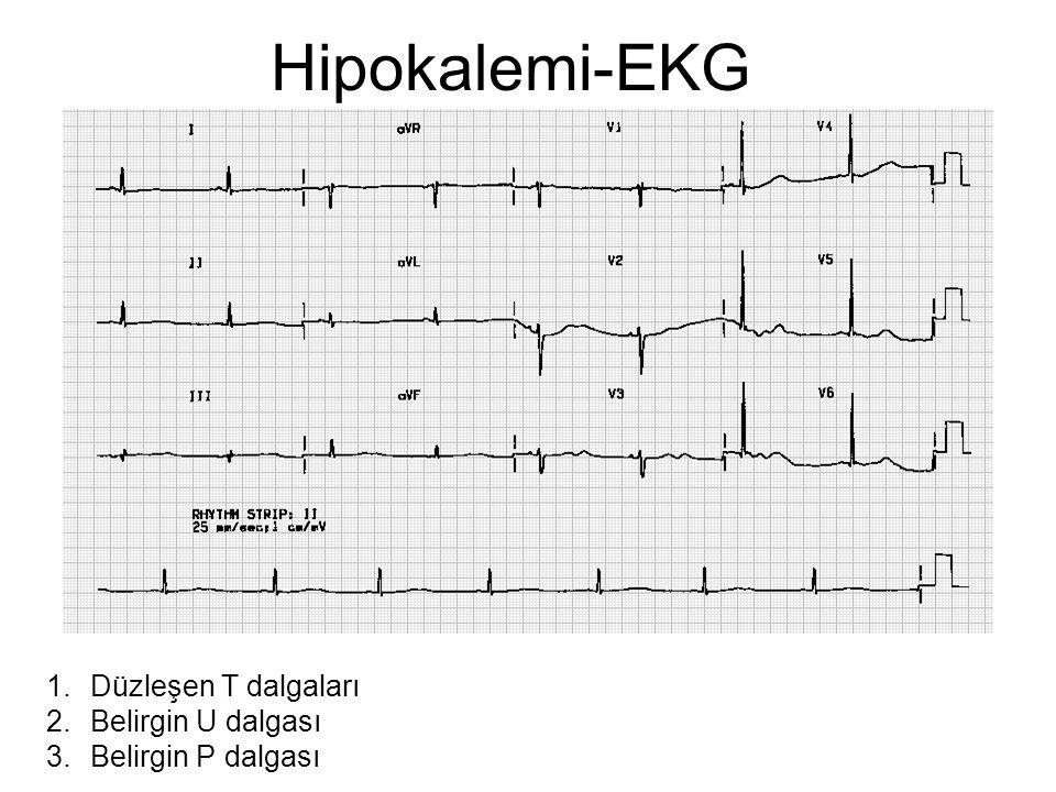 Hipokalemi-EKG Düzleşen T dalgaları Belirgin U dalgası