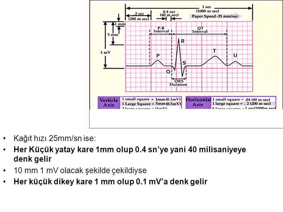 Kağıt hızı 25mm/sn ise: Her Küçük yatay kare 1mm olup 0.4 sn'ye yani 40 milisaniyeye denk gelir. 10 mm 1 mV olacak şekilde çekildiyse.