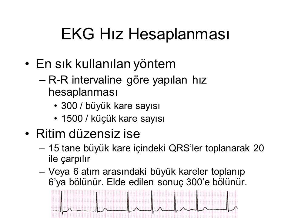 EKG Hız Hesaplanması En sık kullanılan yöntem Ritim düzensiz ise