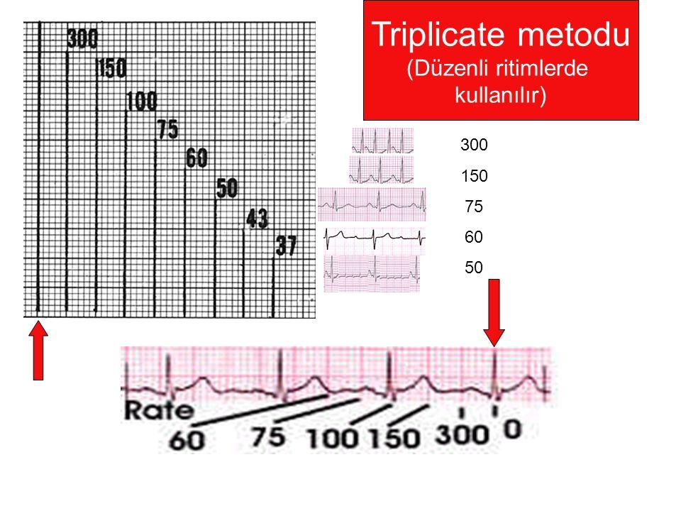 Triplicate metodu (Düzenli ritimlerde kullanılır) 300 150 75 60 50