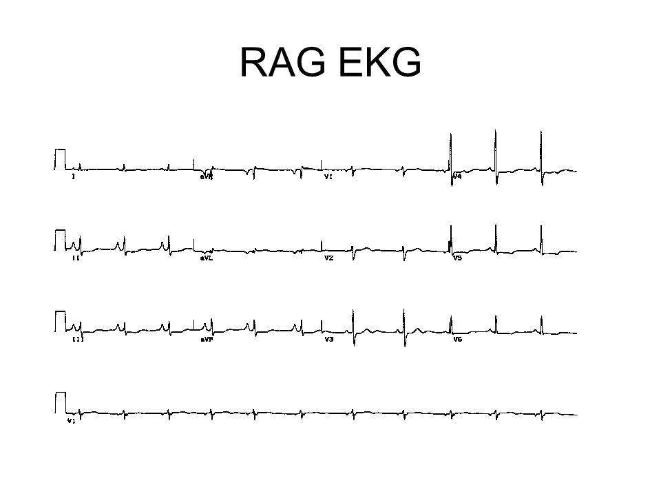 RAG EKG