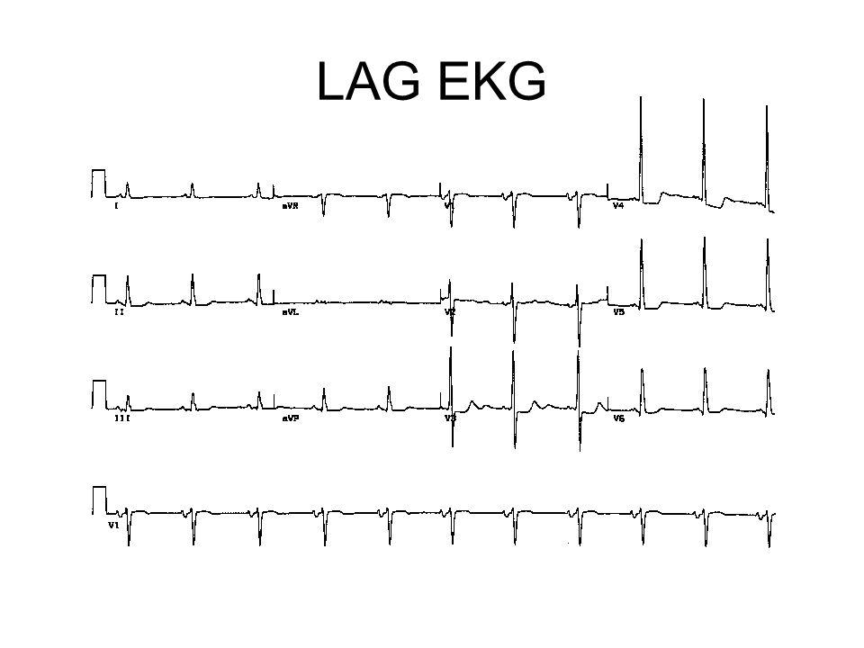 LAG EKG
