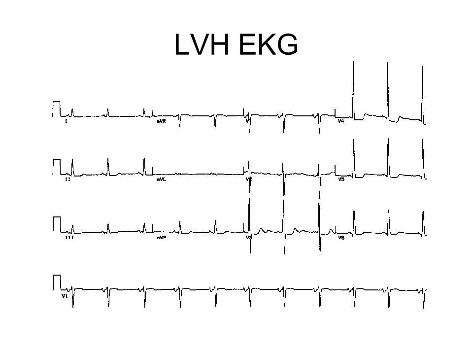 LVH EKG