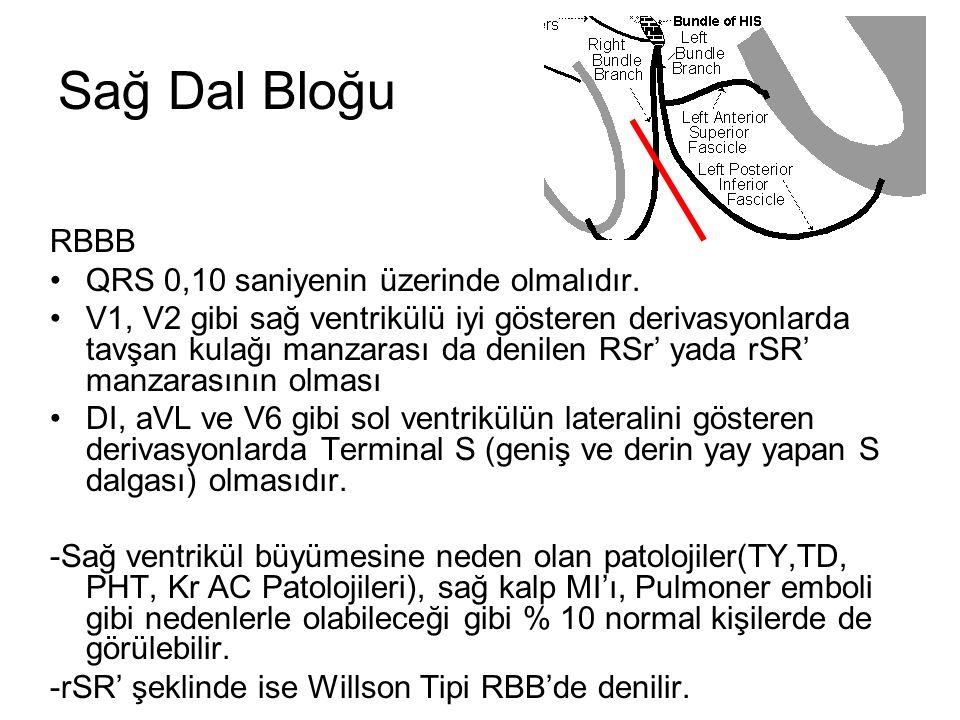 Sağ Dal Bloğu RBBB QRS 0,10 saniyenin üzerinde olmalıdır.