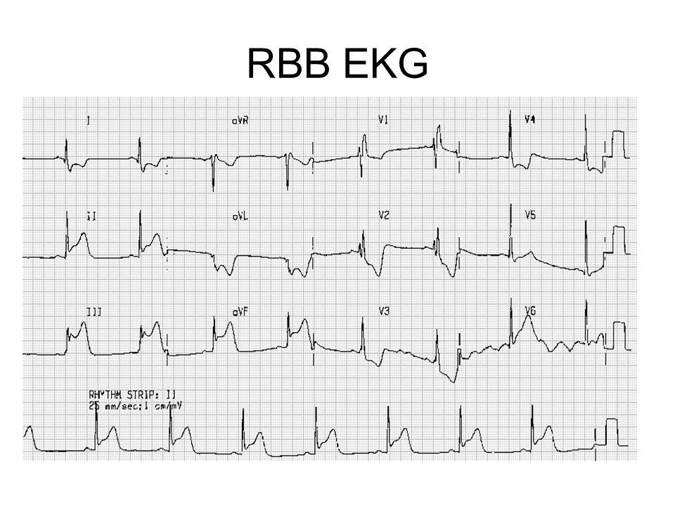RBB EKG