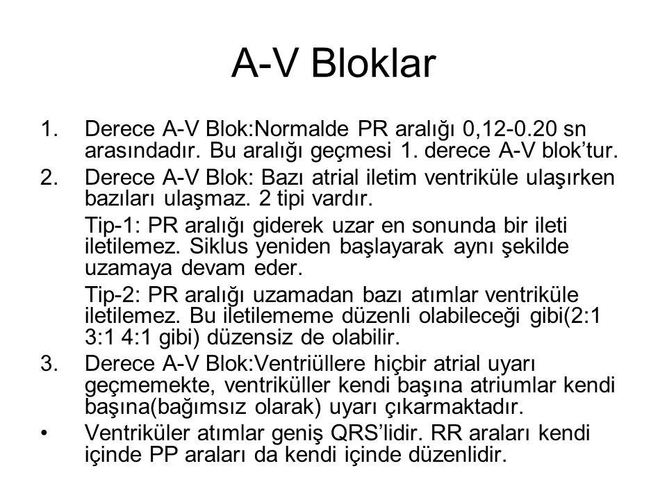 A-V Bloklar Derece A-V Blok:Normalde PR aralığı 0,12-0.20 sn arasındadır. Bu aralığı geçmesi 1. derece A-V blok'tur.