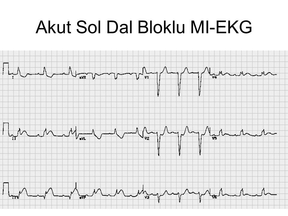 Akut Sol Dal Bloklu MI-EKG