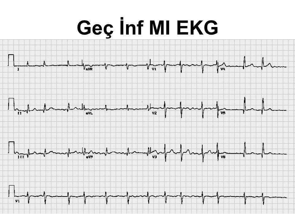 Geç İnf MI EKG