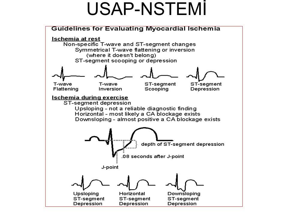 USAP-NSTEMİ