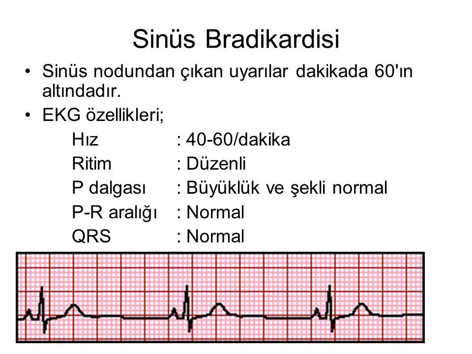 Sinüs Bradikardisi Sinüs nodundan çıkan uyarılar dakikada 60 ın altındadır. EKG özellikleri; Hız : 40-60/dakika.