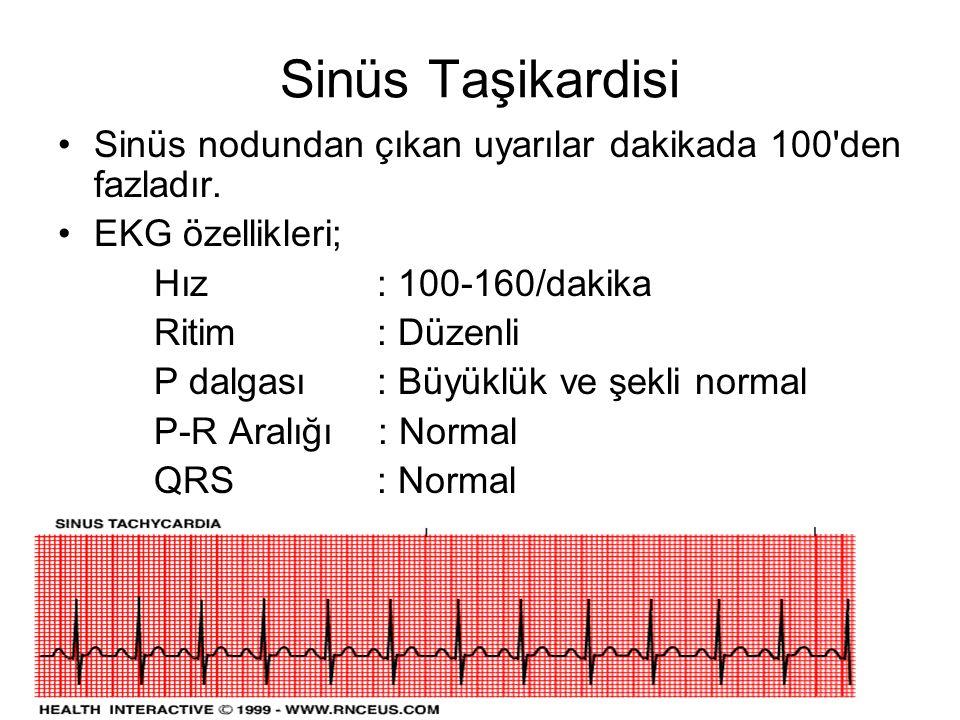 Sinüs Taşikardisi Sinüs nodundan çıkan uyarılar dakikada 100 den fazladır. EKG özellikleri; Hız : 100-160/dakika.