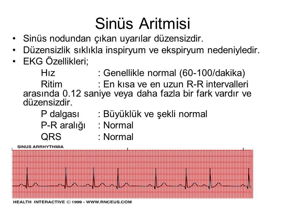 Sinüs Aritmisi Sinüs nodundan çıkan uyarılar düzensizdir.