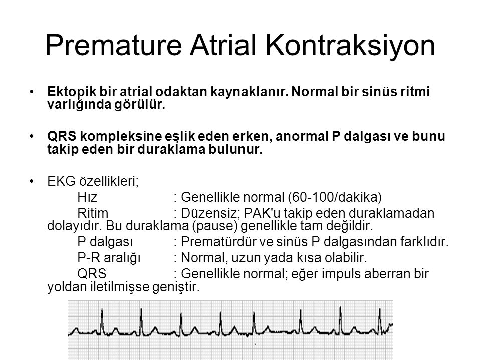Premature Atrial Kontraksiyon