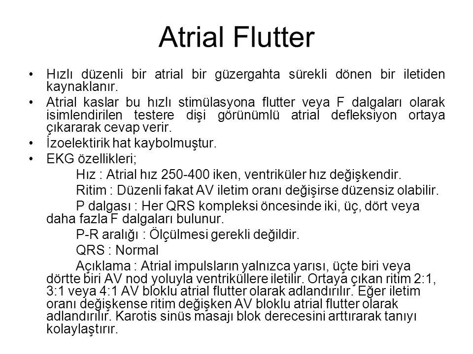 Atrial Flutter Hızlı düzenli bir atrial bir güzergahta sürekli dönen bir iletiden kaynaklanır.