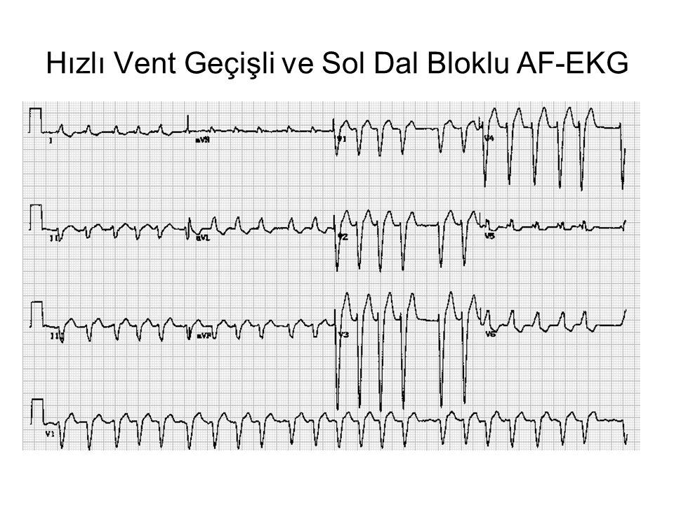 Hızlı Vent Geçişli ve Sol Dal Bloklu AF-EKG