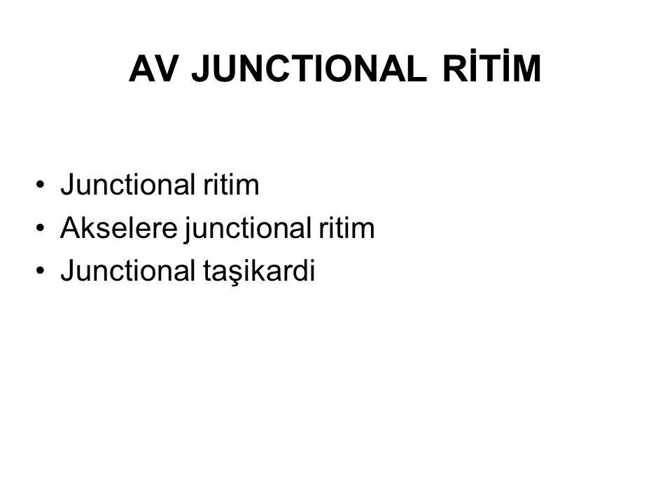 AV JUNCTIONAL RİTİM Junctional ritim Akselere junctional ritim