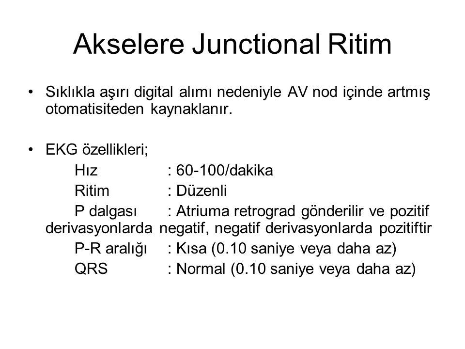 Akselere Junctional Ritim