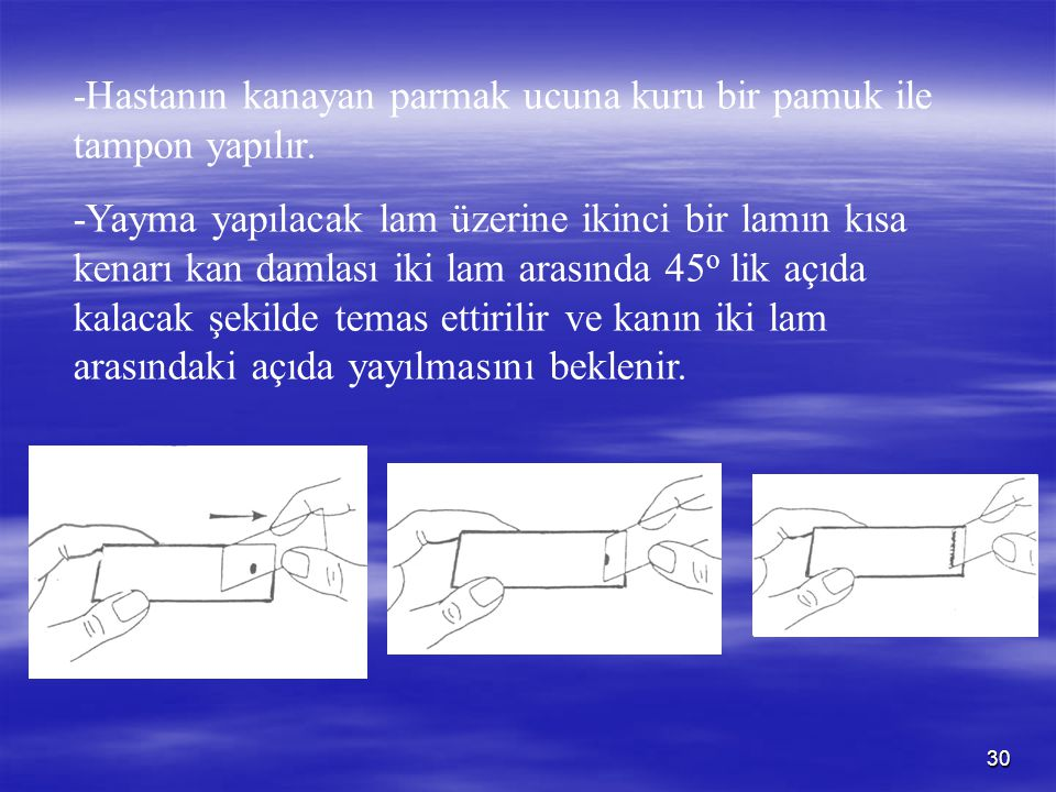 -Hastanın kanayan parmak ucuna kuru bir pamuk ile tampon yapılır.