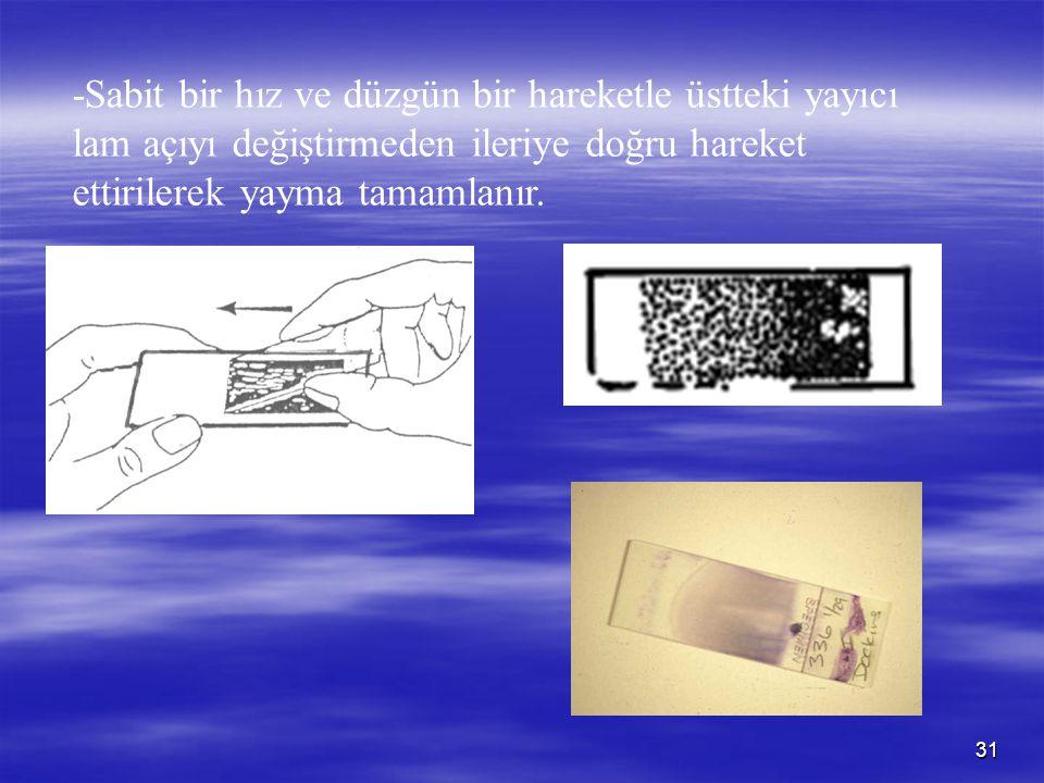 -Sabit bir hız ve düzgün bir hareketle üstteki yayıcı lam açıyı değiştirmeden ileriye doğru hareket ettirilerek yayma tamamlanır.