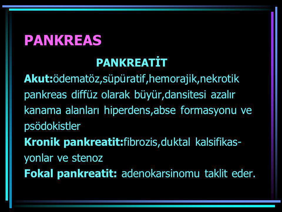 PANKREAS PANKREATİT Akut:ödematöz,süpüratif,hemorajik,nekrotik