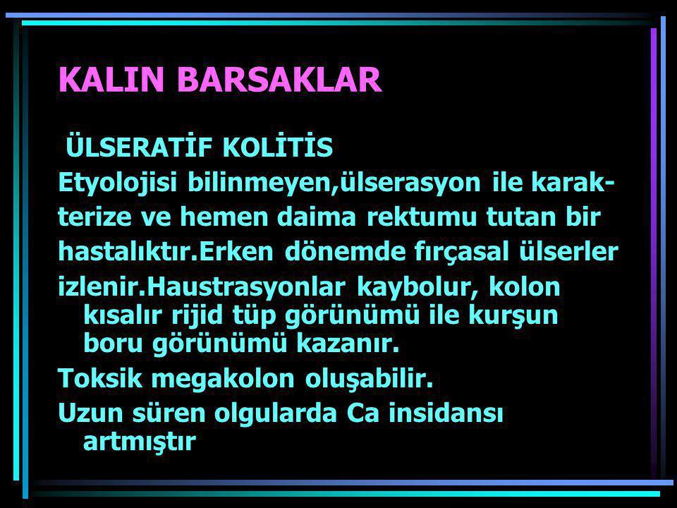 KALIN BARSAKLAR ÜLSERATİF KOLİTİS