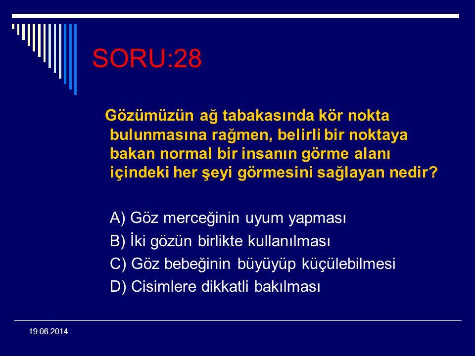 SORU:28