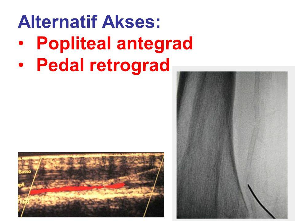 Alternatif Akses: Popliteal antegrad Pedal retrograd