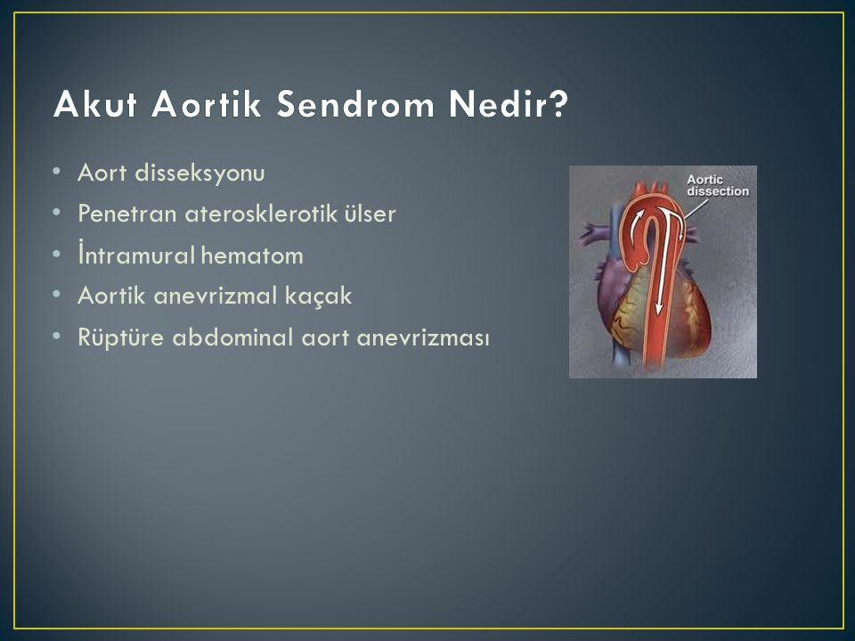 Akut Aortik Sendrom Nedir