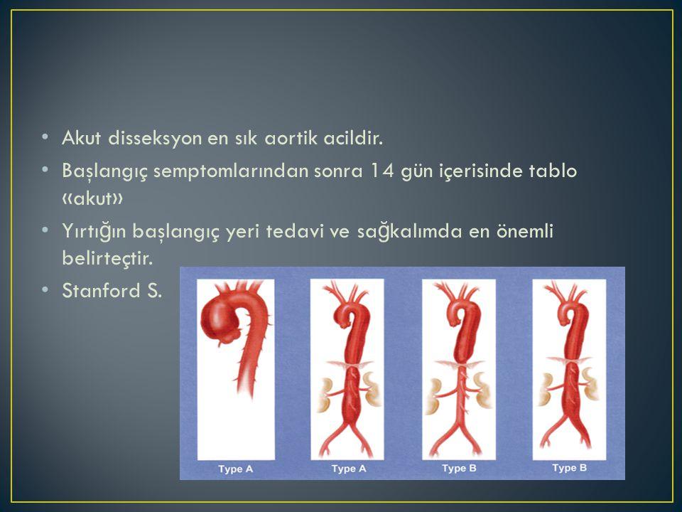 Akut disseksyon en sık aortik acildir.