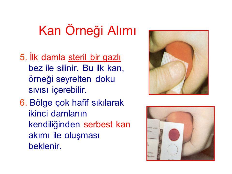Kan Örneği Alımı 5. İlk damla steril bir gazlı bez ile silinir. Bu ilk kan, örneği seyrelten doku sıvısı içerebilir.